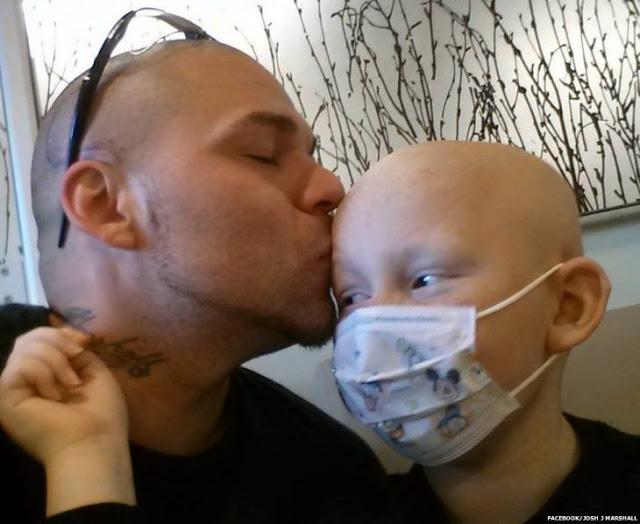 Padre se tatúa la cabeza en apoyo a su hijo con cáncer