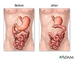 วิธีรักษามะเร็งกระเพาะอาหาร