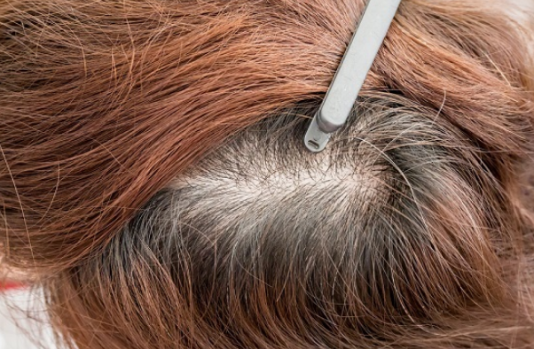 كيفية علاج تقصف الشعر من الامام وتطويل الشعر بدون قص