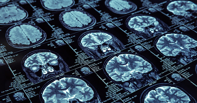 Imaging Dementia - Evidence for Amyloid Scanning at Atlantic Medical Imaging