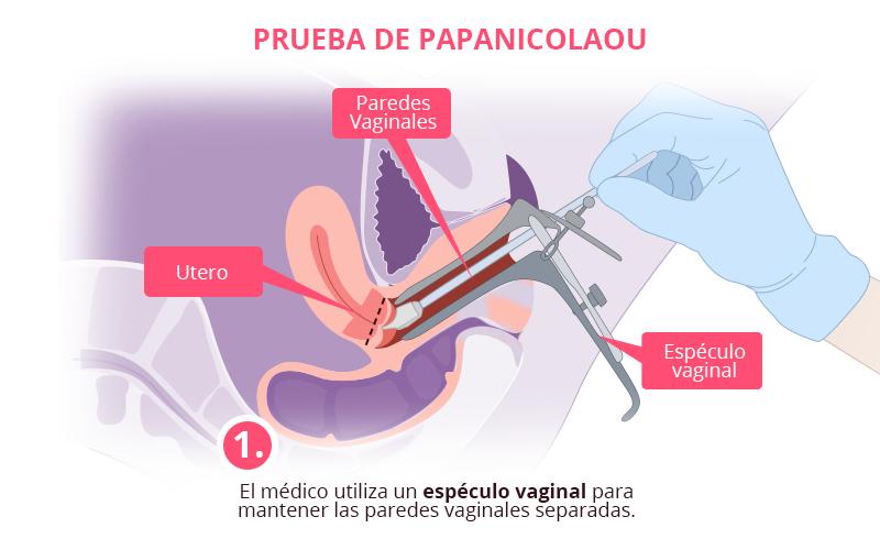 prueba del papiloma humano en hombres