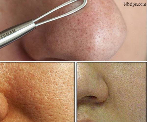 http://www.nbtips.com/2014/09/15-natural-tips-to-reduce-and-shrink-large-open-pores.html