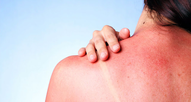 Tips to treat 6 summer skin problems