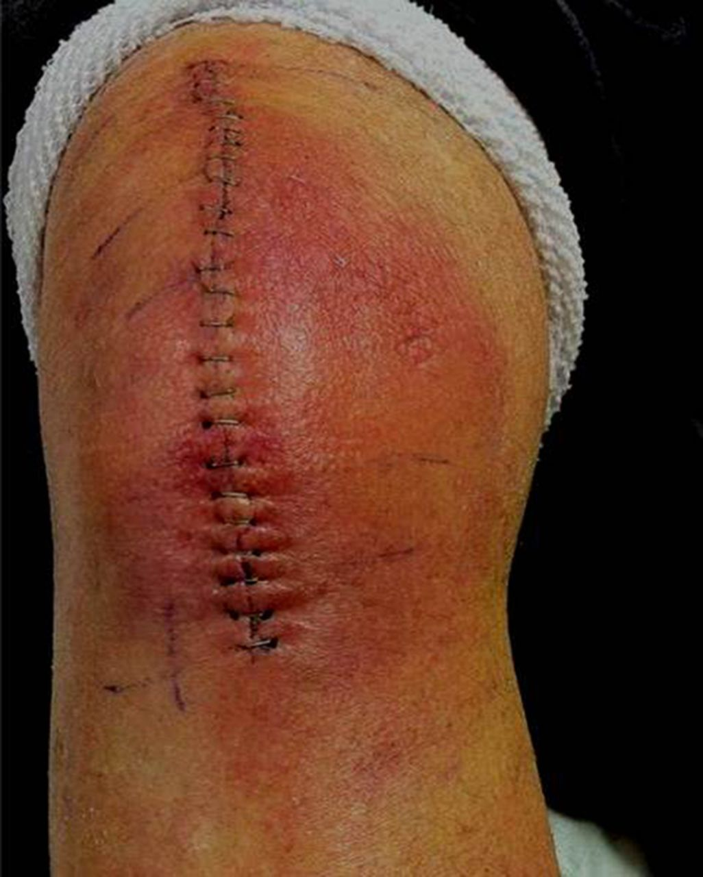 infected surgical wound of total knee replacement nursing essay In this paper we discuss the background, structure, aims and rationale of this   infection following hip and knee replacement is a serious complication  and a  return to surgery for a repeat arthroplasty more than six weeks later   cunningham c, clinical nurse specialist, infection prevention & control,.