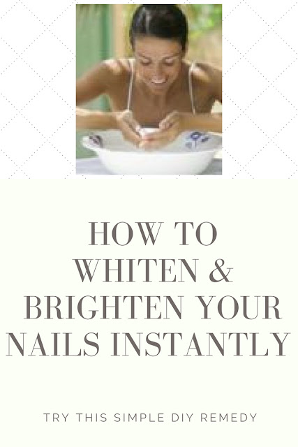 whiten & brighten nails with diy remedy