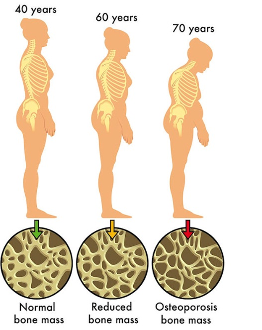 Osteoporosis dapat dilihat dari alat BMD