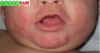 Fig. 5.1 Atopic dermatitis.