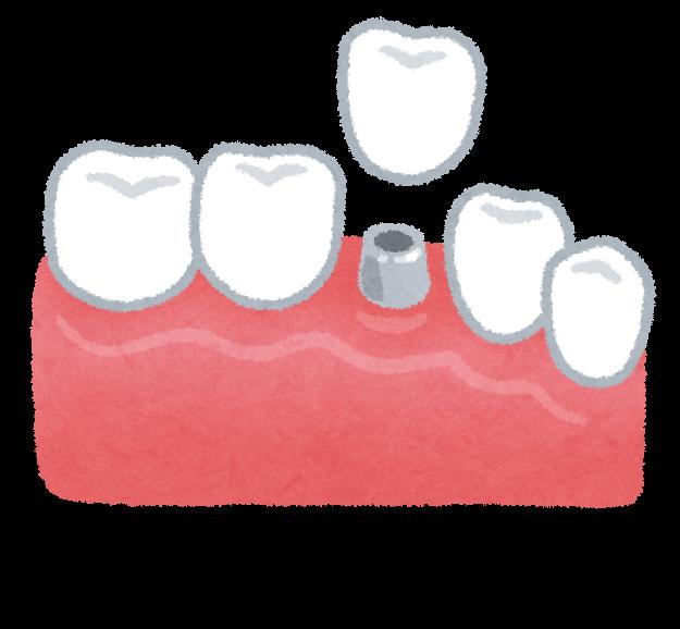 インプラントのイラスト(歯の治療) | かわいいフリー素材集 いらすとや