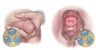penyakit kencing nanah atau gonore