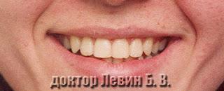Красивая улыбка пациента после ортодонтического  лечения