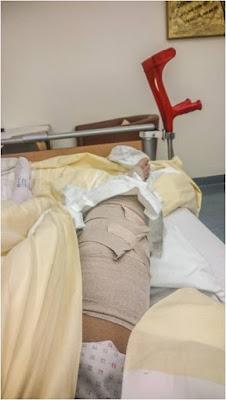 Kreuzbandriss nach der Operation