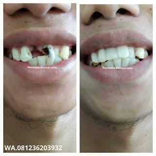 foto, gambar, gigi depan hitam Permata Dental Bali| sebelum dan sesudah gigi hitam diperbaiki di Permata Dental Bali | foto gigi keropos hitam Permata Dental Bali |gigi hitam karena sakit | gigi hitam berlubang di Permata Dental Bali | gigi hitam depan di Permata Dental Bali | gigi hitam bagian belakang | foto gigi hitam yang sudah diperbaiki Permata Dental Bali |  gigi hitam bagian depan| foto gigi keropos dan hitam, foto gigi hitam oleh Permata Dental Bali , Bali Hits, Bali banget, area Bali, Bali  kota, area kampus Bali. veneer gigi hitam Bali | gambar sebelum dan sesudah veneer gigi hitam dan berlubang  veneer gigi hitam Bali | veneer gigi hitam denpasar| veneer gigi hitam nusadua | veneer gigi hitam ngurahrai| veneer gigi hitam badung| veneer gigi hitam jember jimbaran| veneer gigi hitam gatsu| veneer gigi hitam bali | veneer gigi hitam bagus di Permata Dental Bali | veneer gigi hitam baik di Permata Dental Bali | veneer gigi hitam cepat di Permata Dental Bali | veneer gigi hitam murah di Permata Dental Bali | veneer gigi hitam aman di Permata Dental Bali | veneer gigi hitam mudah di Permata Dental Bali | veneer gigi hitam promo Permata Dental Bali | gambar veneer gigi hitam Permata Dental Bali | gambar sebelum dan sesudah veneer gigi hitam dan berlubang Permata Dental Bali | veneer gigi hitam bagus | veneer gigi hitam baik | veneer gigi hitam cepat | veneer gigi hitam murah| veneer gigi hitam aman | veneer gigi hitam mudah  | veneer gigi hitam promo | gambar veneer gigi hitam | gambar sebelum dan sesudah veneer gigi hitam dan berlubang Permata Dental Bali | foto veneer gigi hitam Permata Dental Bali |perbaiki gigi hitam Permata Dental Bali | cara mengatasi gigi hitam Permata Dental Bali | menghilangkan gigi hitam Permata Dental Bali | cara menghilangkan gigi hitam Permata Dental Bali | cara memutihkan  gigi hitam Permata Dental Bali | membantu menghilangkan gigi hitam Permata Dental Bali | perbaiki Permata Dental Bali | harga perbaiki gigi hitam Permata Dental