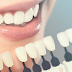 Know Who is The Perfect Candidate for Porcelain Veneers