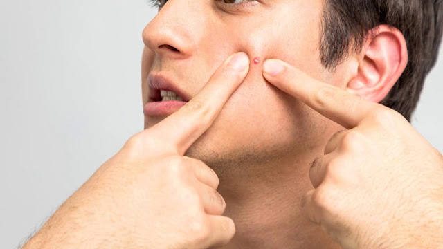 Effective Acne Treatment for Boys