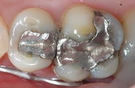 Trám kẽ răng là gì ?