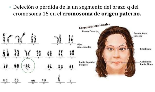 A síndrome de Prader-Willi