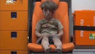 5 Alasan Foto Bocah Suriah di Ambulans Menggoncang Dunia