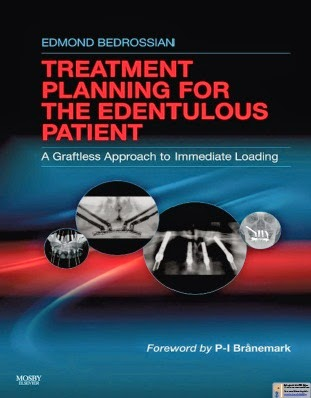 Implant Treatment Planning For The Edentulous... A Graftless Approach to Immediate Loading -Edmond Bedrossian - © 2011.PDF