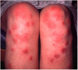 Erythema Nodosum - Symptoms, Causes, Diagnosis, Treatment