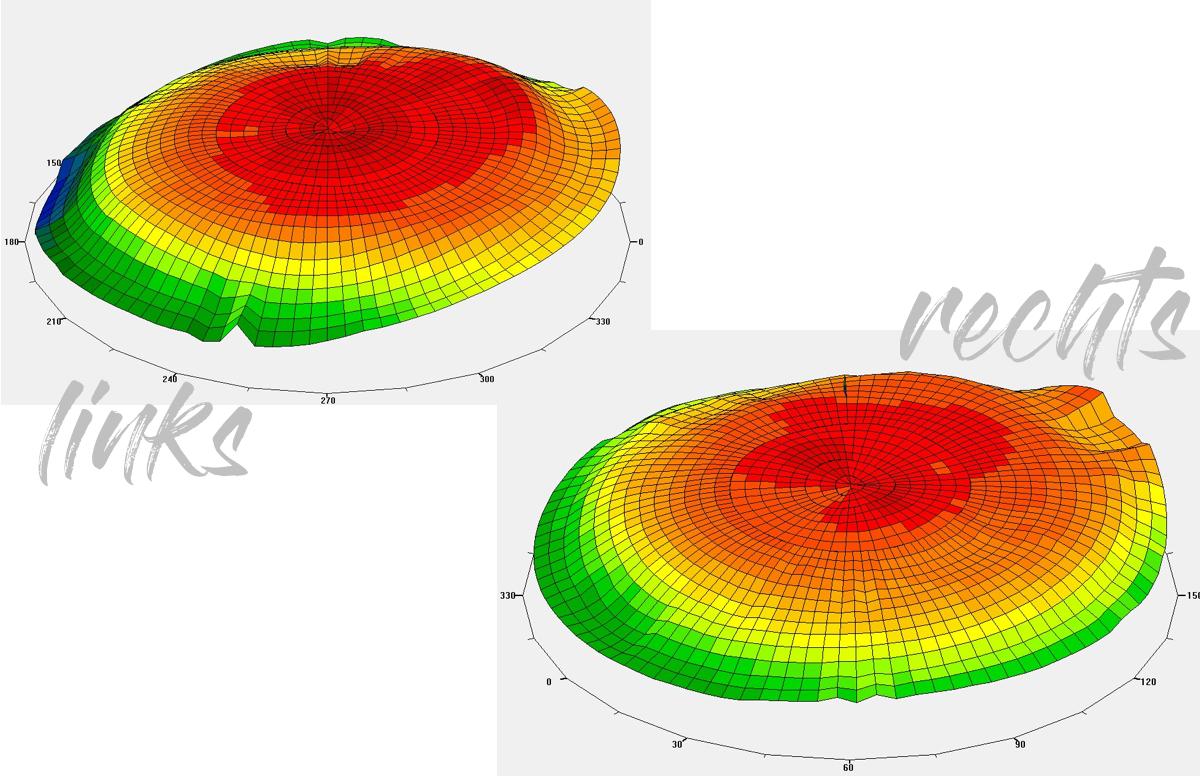 ACUVUE VITA Erfahrungen Monatslinsen HydroMax Technologie