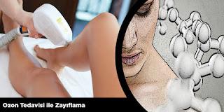 Ozon Tedavisi ile Zayıflama