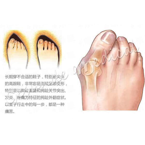 dimana beli alat terapi jari kaki