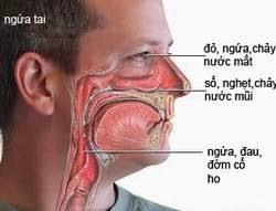 Những biểu hiện của viêm mũi dị ứng