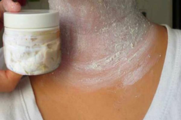 Retire las manchas oscuras molestos en el cuello, las axilas y el interior se notó en 15 Minutos