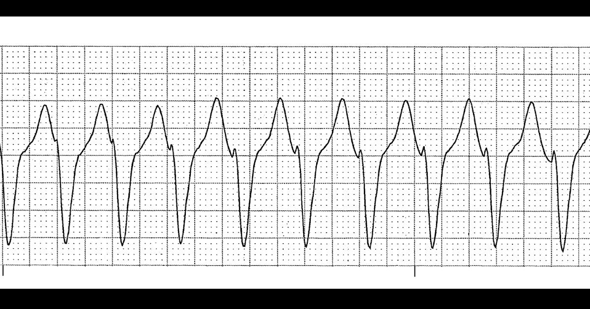 Nurse Health Guides : Practice Rhythm Strips 262