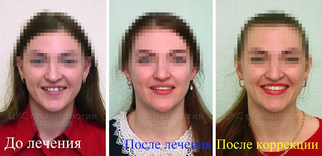 Улыбка до и после брекетов и после коррекции формы зубов