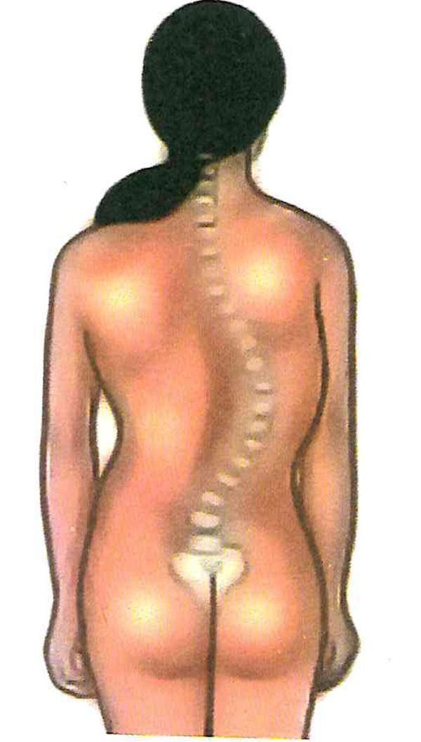 Observe a deformação óssea e classifique-a
