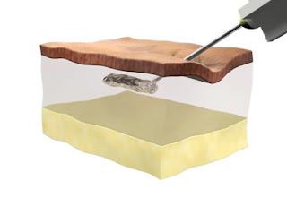 Dolgu maddesi ciltteki kırışıklıkları nasıl doldurur? - Dolgu enjeksiyonu animasyonu - Cilt dolgusunun deri altına enjeksiyonu - Dermal dolgular derideki çökük alanları nasıl doldurur