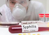 Obat Sipilis Tradisional Terbukti Menyembuhkan dengan Cepat