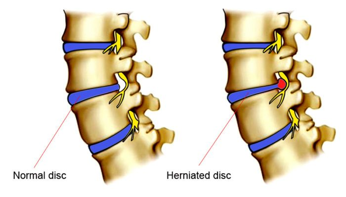 normal and herniated disk