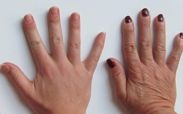 rejuvenecer las manos
