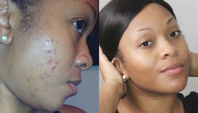 buy Black Skin Care Products For Dark Spots