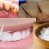 Tak Perlu Biaya Mahal !!! Gigi Anda Putih Cemerlang Hanya Dalam 1 Detik Dengan Bumbu Dapur, Berikut Langkahnya ....