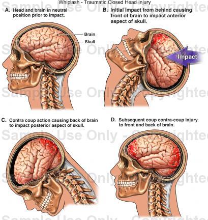 hematoma kepala