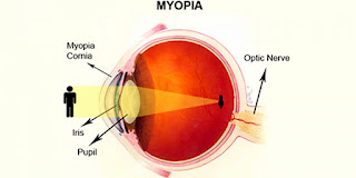 Myopia Causes... Is it very the Eye?
