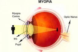 Myopia Causes... Is it very the Eye?
