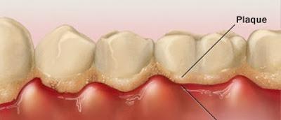 Viêm nha chu là nguyên nhân gây chảy máu răng