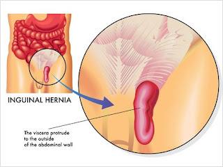 hernia surgery