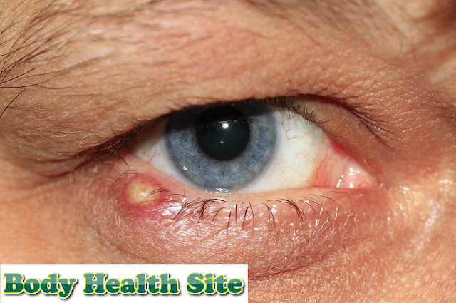 The types of eye diseases are required to be wary