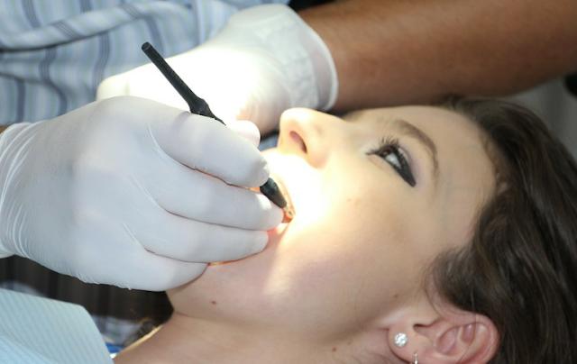 Białe zęby vs przebarwienia