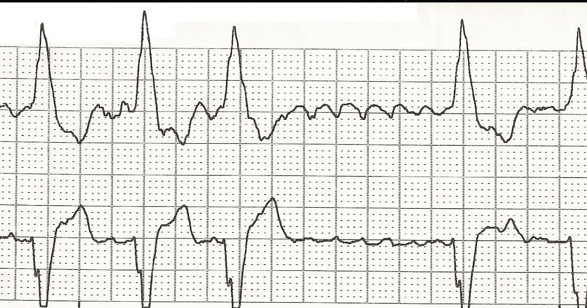 Float Nurse: EKG Rhythm Strips 50