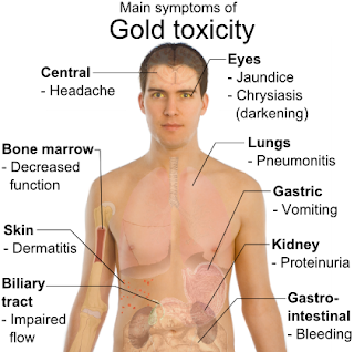 Symptoms_of_gold_toxicity