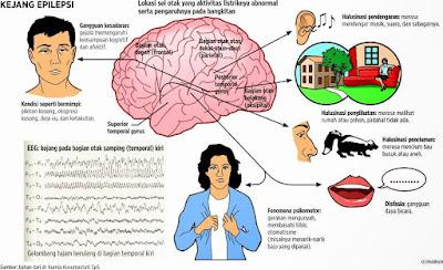 gejala-penyakit-epilepsi