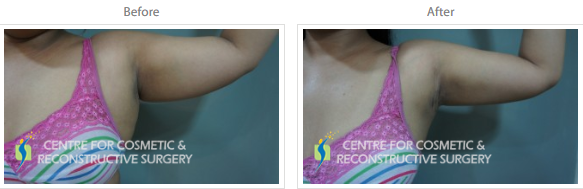 Arm Liposuction Mumbai