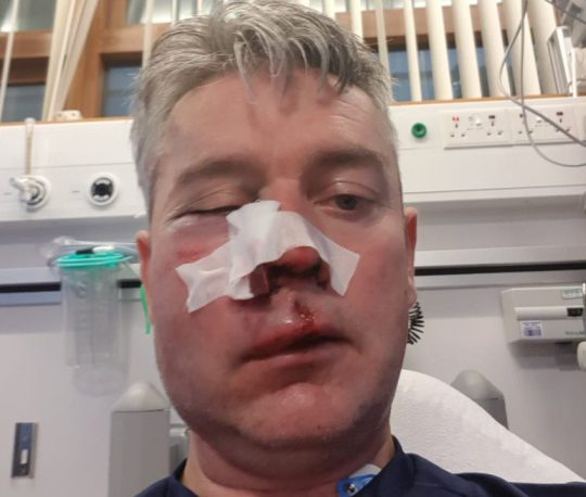 Referee's Jaw Broken By Players During A Football Match