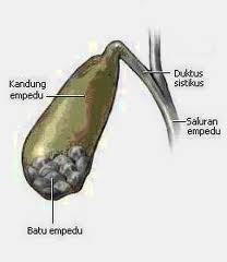 Cara Memecahkan dan Mengeluarkan Batu Empedu